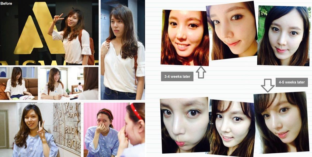 nose job in korea english